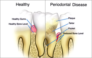 Dental Debridement