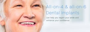 All-on-4 and all-on-6 Dental Implants